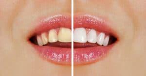 Est?tica dental