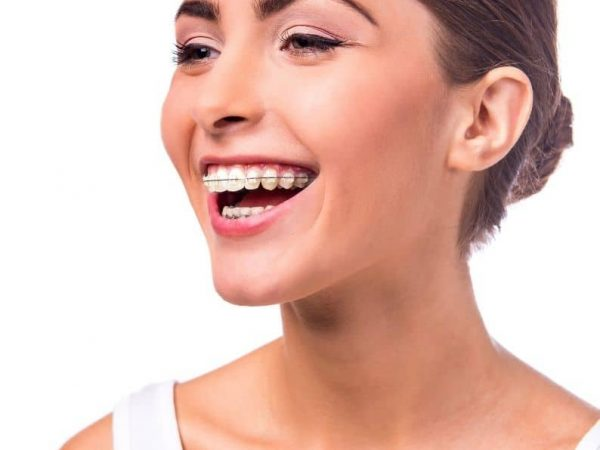 Brackets metálicos clínica dental aribau